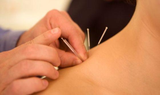L'applicazione degli aghi è dolorosa?