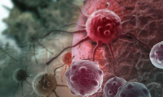 Tumori in crescita tra bambini e giovani