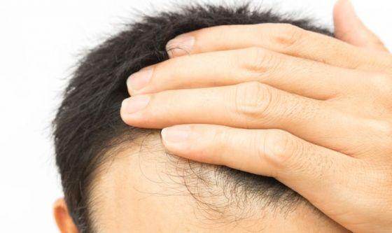 I principali tipi di alopecia