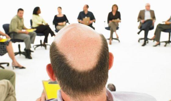 Sei a rischio caduta capelli? Scoprilo con un test