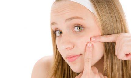 Prodotti per pelle a tendenza acneica