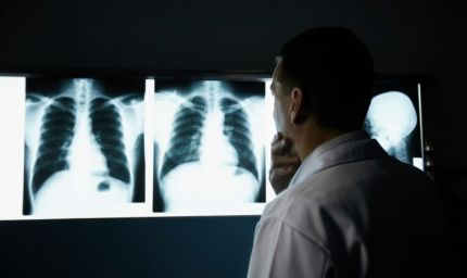 Novembre, mese di sensibilizzazione sul tumore al polmone