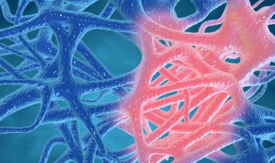 Le proprietà antinfiammatorie