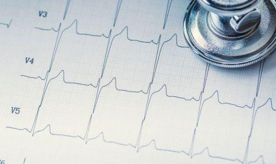 Sottoporsi a esami del sangue e all'elettrocardiogramma