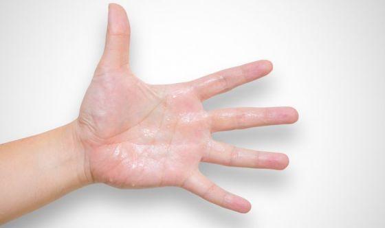 5 rimedi contro le mani che sudano