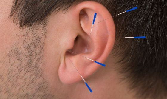 Agopuntura e auricoloterapia