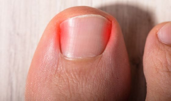 Le unghie incarnite
