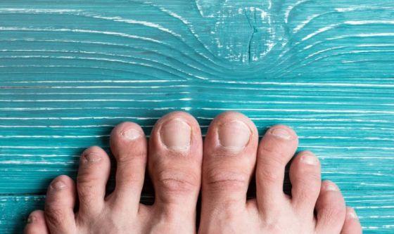 Le cause dell'unghia incarnita e i rimedi naturali