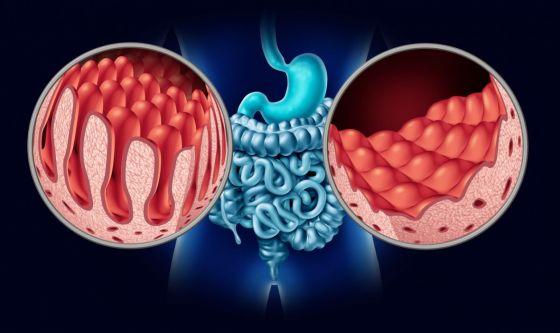 Celiachia: quali prospettive?