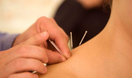 L'agopuntura per l'ansia