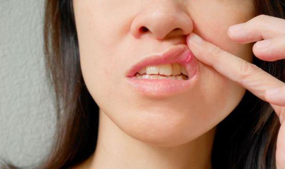 5 sintomi che potrebbero indicare un problema di salute