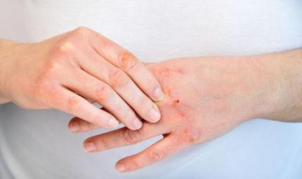 Un nuovo trattamento per la dermatite atopica