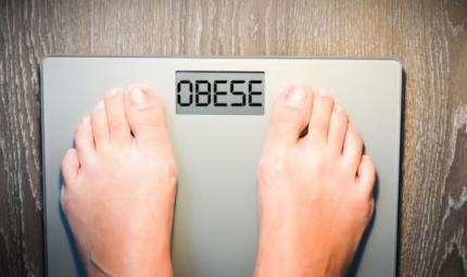 Aumento esponenziale degli interventi sugli ex obesi