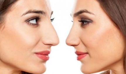 Il clima influenza anche la forma del naso