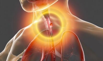 Tumore esofago: approvato nivolumab come trattamento