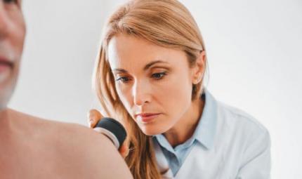 Tumori, nuovo studio sul melanoma