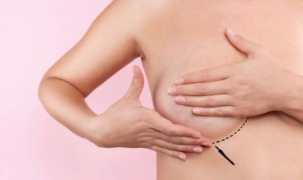 Lifting del seno, il perché del successo