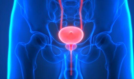 Urologo, il sarto della prostata: sì a cure su misura