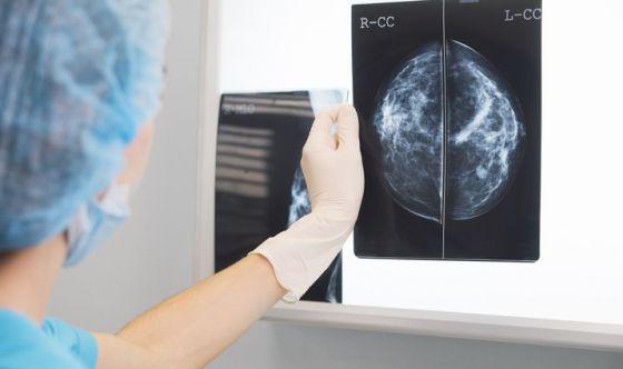 Solo la metà delle italiane fa regolarmente la mammografia