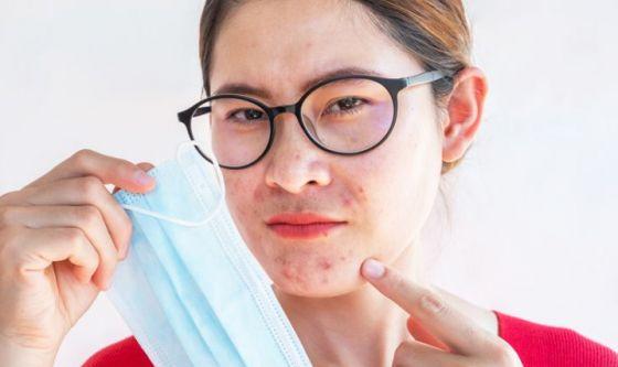 Maskne, il nuovo volto dell'acne