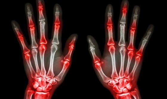 Artrite: scoperta la molecola in grado di 'accenderla'