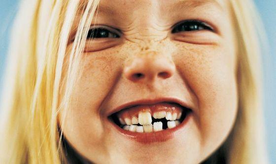 Froggy, il sorriso perfetto si costruisce dai 3 anni