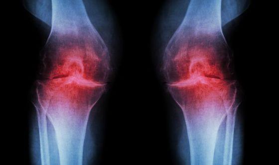 Osteoartrite: nuove prospettive terapeutiche
