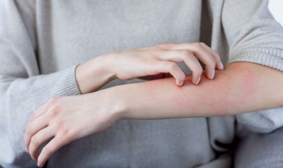 Covid: un altro campanello d'allarme è la pelle