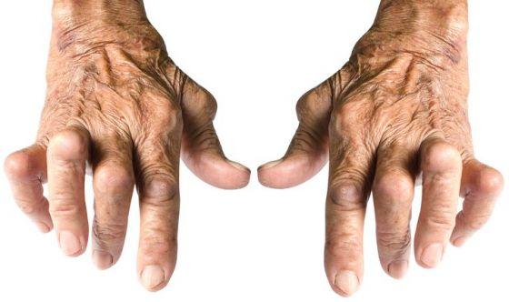 Artrite reumatoide: meno dolore, più produttività sul lavoro