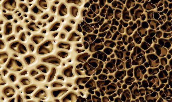 Osteoporosi: il test online che valuta i rischi di frattura