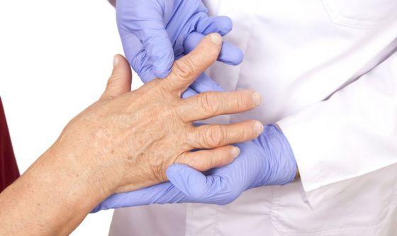 Artrite reumatoide, approvazione per filgotinib