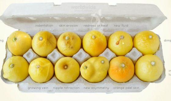 Dodici limoni per combattere il tumore del seno