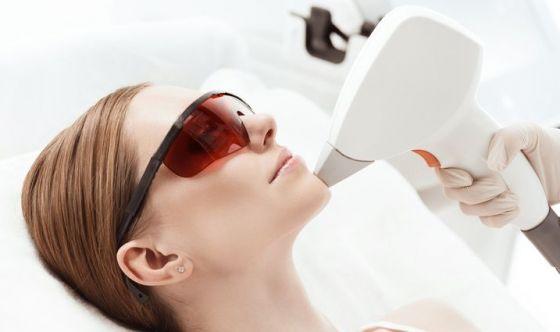 Addio alle cicatrici da acne con il laser frazionato