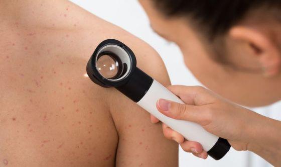 Un cerotto a micro-aghi contro il melanoma