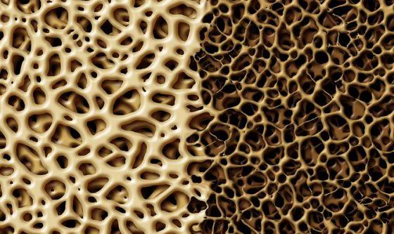 Osteoporosi: quando l'osso è fragile