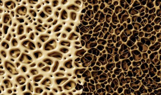 Osteoporosi, ecco come prevenirla
