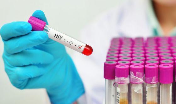 HIV e sesso: il rischio contagio da pazienti in cura è zero