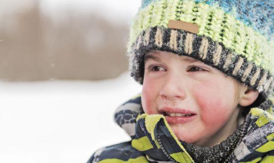 Dermatite da freddo nei bambini: come gestirla