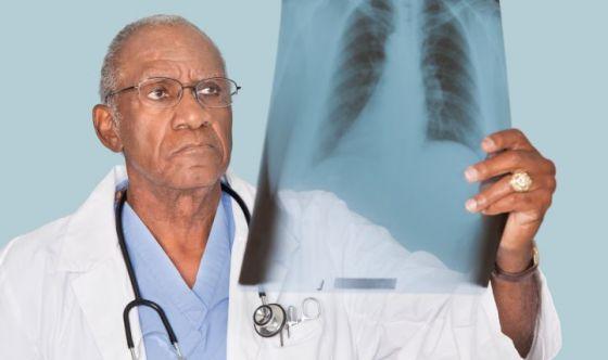 Se dico fibrosi polmonare, cosa ti viene in mente?