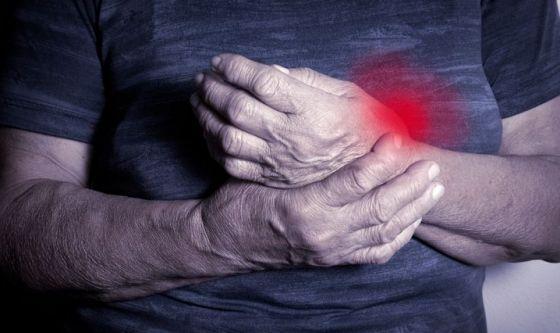 Artrite reumatoide: remissione per il 60% dei pazienti