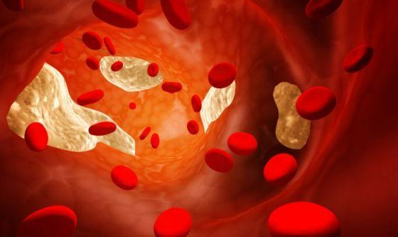 Infarti e ictus: 4 abitudini da correggere per prevenirli
