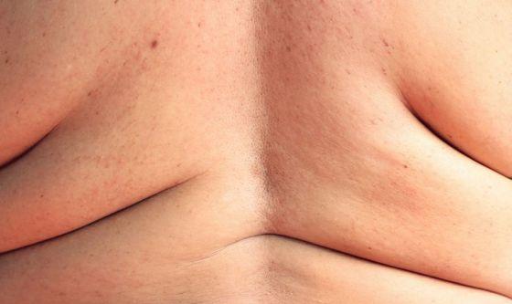 Stimolazione  magnetica transcranica contro obesità