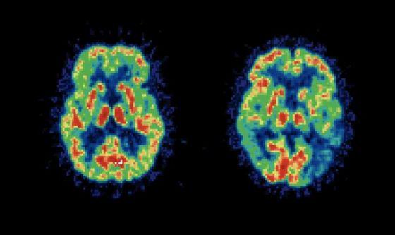 Il cervello è capace di creare strutture a 11 dimensioni