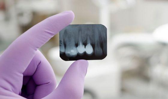 Troppi raggi X dal dentista: spesso sono inutili