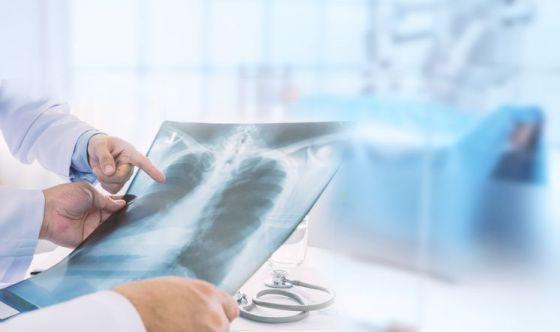 Tumore al polmone, oggi frequente anche nelle donne