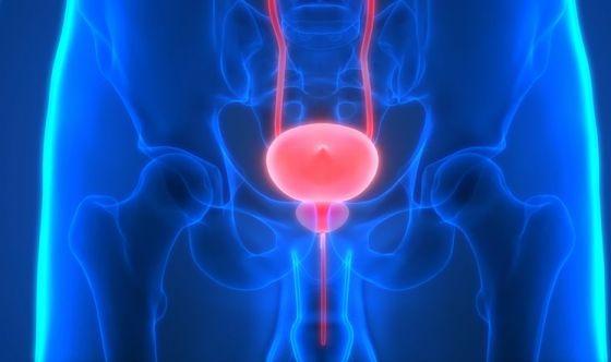 Tumori: nuovo metodo per identificare recidive alla prostata