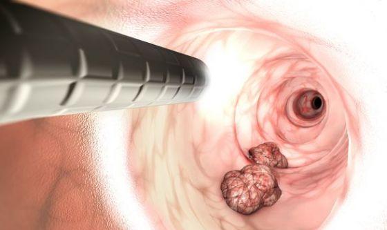 Tumore colon retto: perché è così eterogeneo