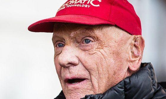 Niki Lauda e quelle cicatrici sul viso