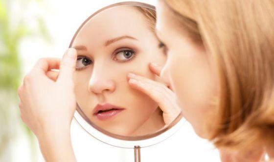 L'acne in età adulta? Non è insolita