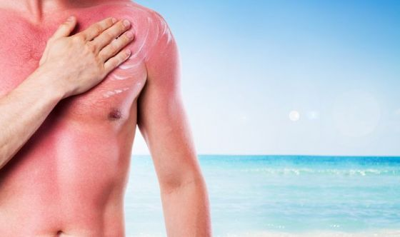 Eritema solare: i consigli del dermatologo